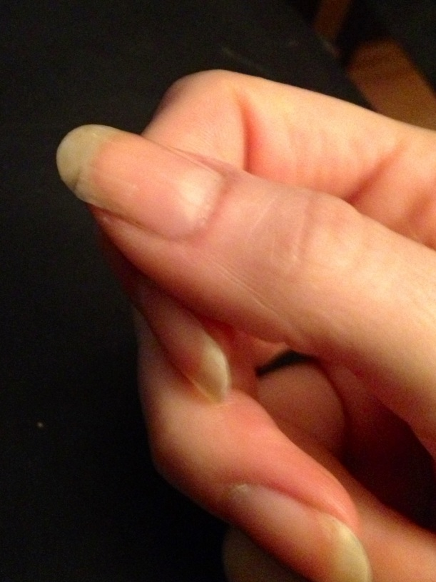 Repaired Broken Nail
